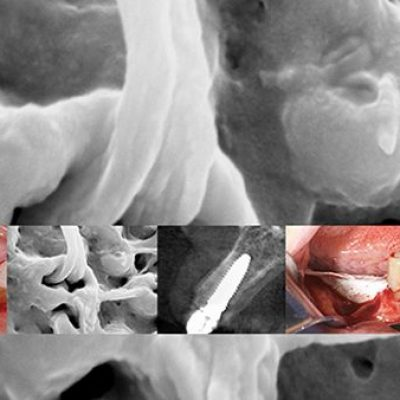 perfeccionamiento-implantologia-avanzada-home