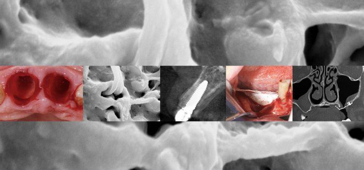perfeccionamiento-implantologia-avanzada-santiago